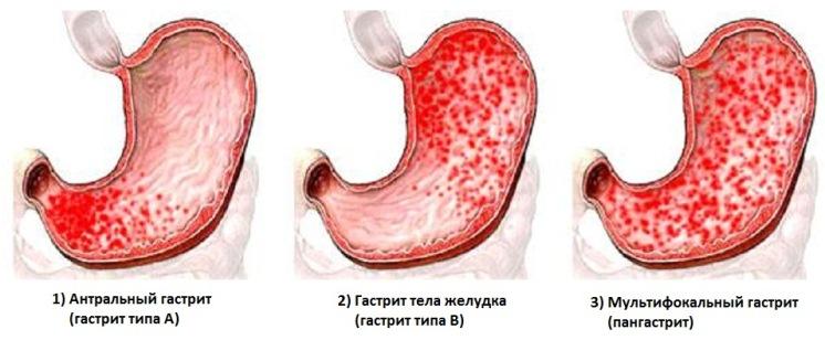 Степени поражения желудка