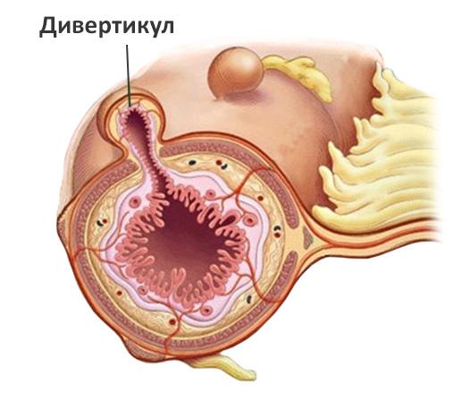 Как выглядит разрез пищевода с патологией