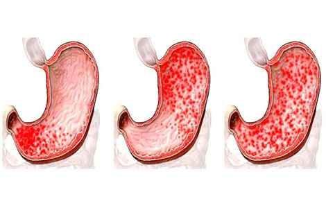 Процесс развития болезни в кишечнике