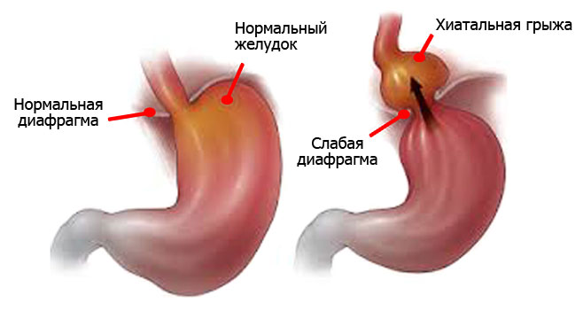 Как выглядит здоровый и больной желудок