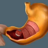 Как устроен желудок человека