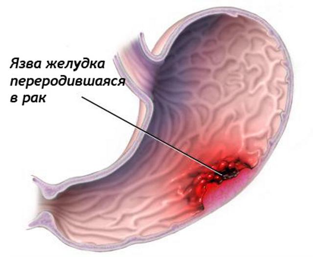 Переродившая в рак язва желудка