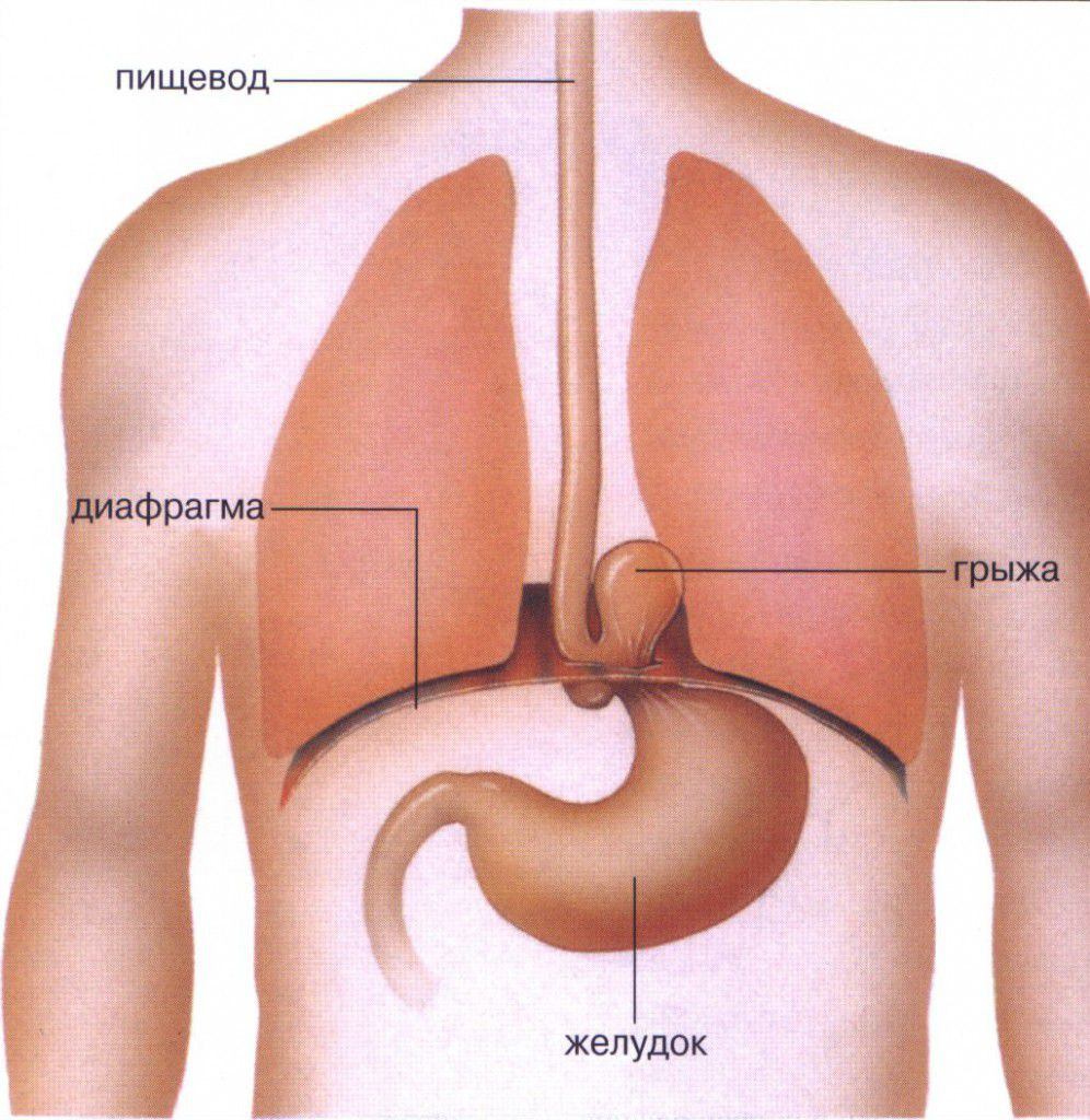 Где образуется грыжа в диафрагме