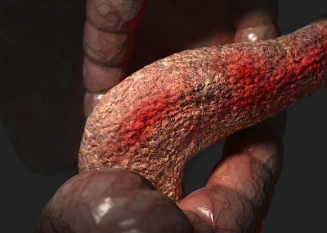 Воспаления на реактивной поджелудочной железе