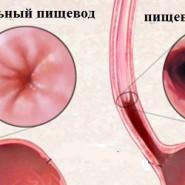 Отличие между здоровым и больным пищеводом существенные и сразу видны при эндоскопичной диагностике