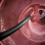 Удаление полипа необходимо из-за возможного перерождения в рак