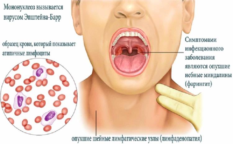 Инфекционное заболевание