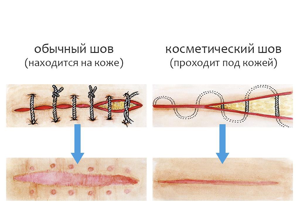 Швы при полосовой операции