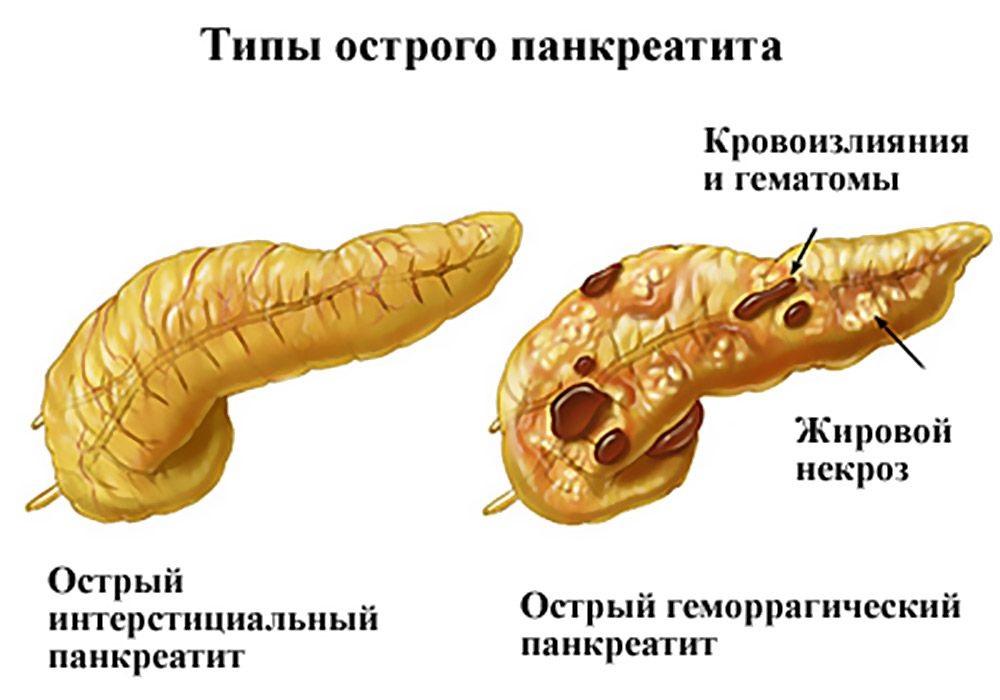 Патологии поджелудочной железы