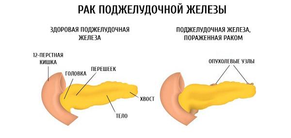 Новообразования могу находится в головке и прошейке железы