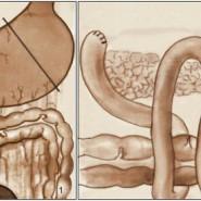 Во время операции часть желудка удаляется