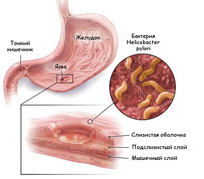 Язва желудака