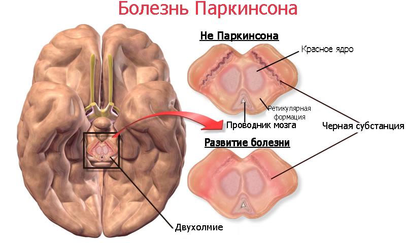 Мозг при паркинсоне