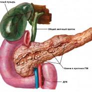 Болезнь вызывает образование камней в поджелудочной железе