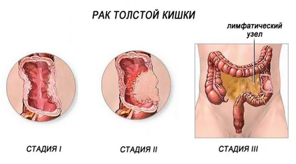 Рак толстой кишки и его стадии