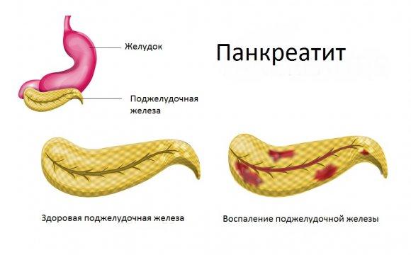 Панкреатит и его симптомы