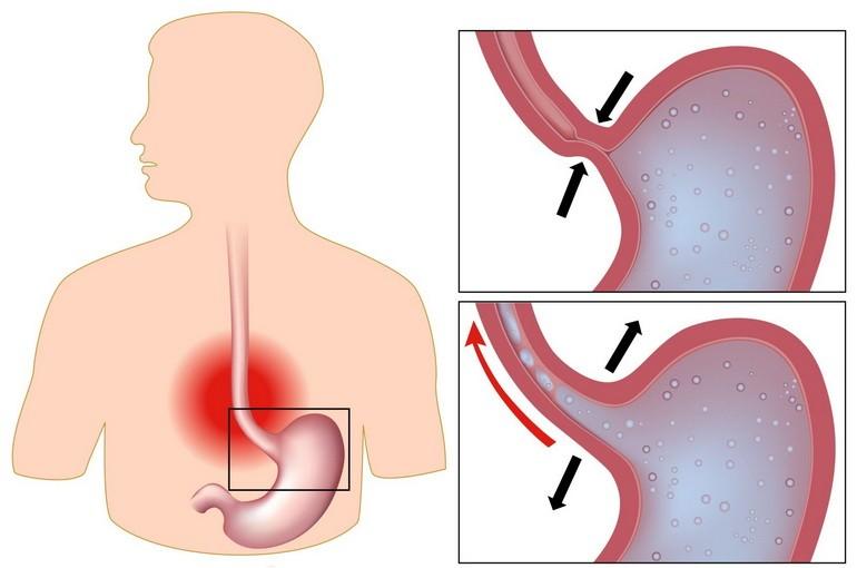 Отсуствие тонуса мышцы приводит к выбросу кислоты в пищевод