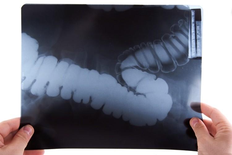 По рентген-снимку доктор окончательно поставит диагноз