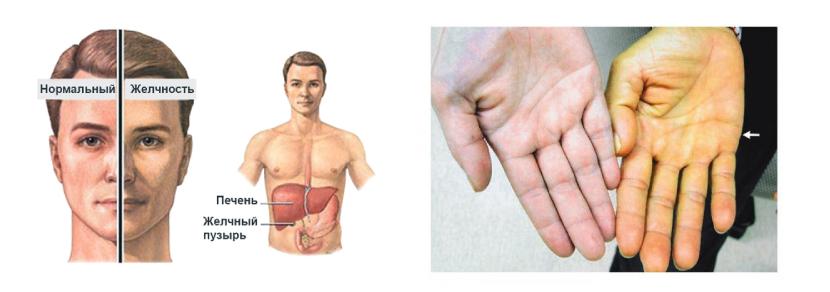 Выброс билирубина в кровоток