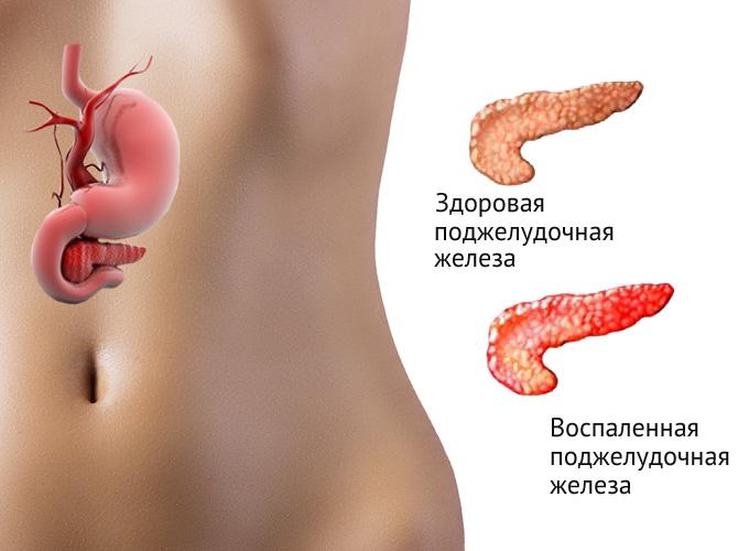 Здоровый и больной орган пищеварения