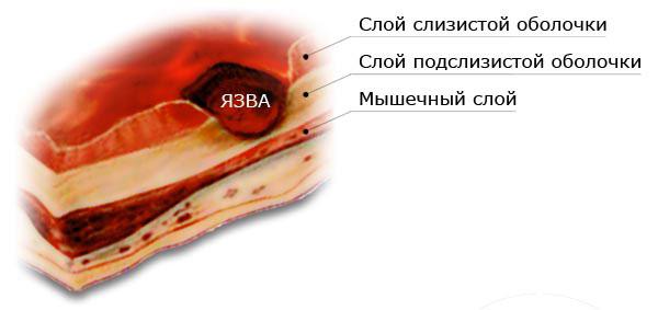 Где образуется язва на слизистой оболочке кишечника