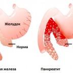 При панкреатите воспаляется поджелудочная железа