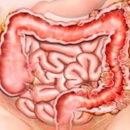 Болезнь характеризуется появлением пупырчатых образований в кишке