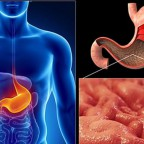 Болезнь вызывает образование спаек в слизистой желудка