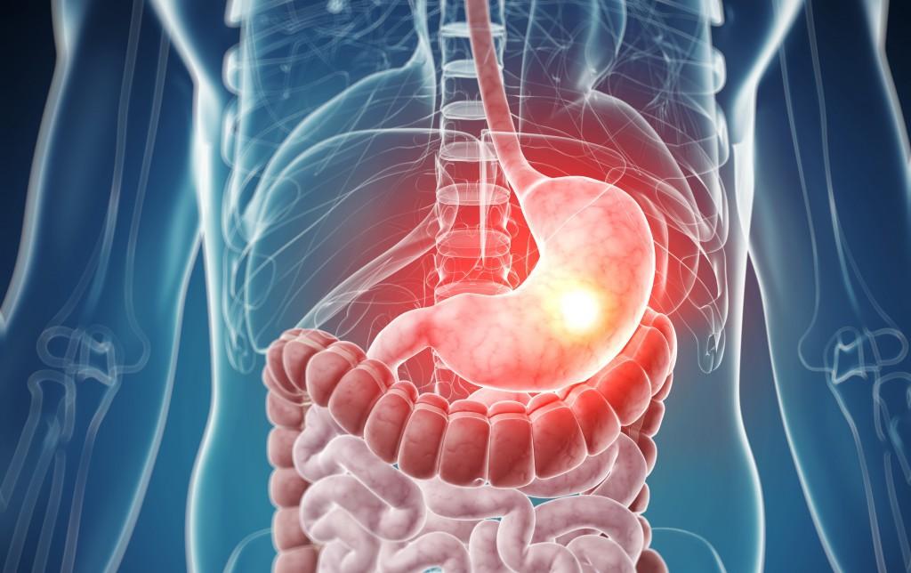 Даже дома можно определить уровень кислотности желудка