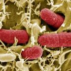 Нарушение флоры кишечника приводит к тошноте и рвоте