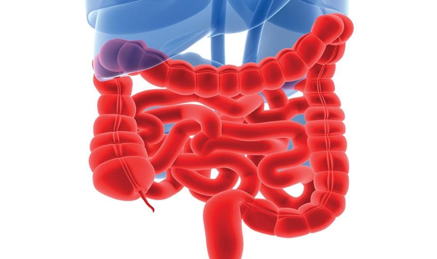 Больной кишечник покрыт язвами и ранами