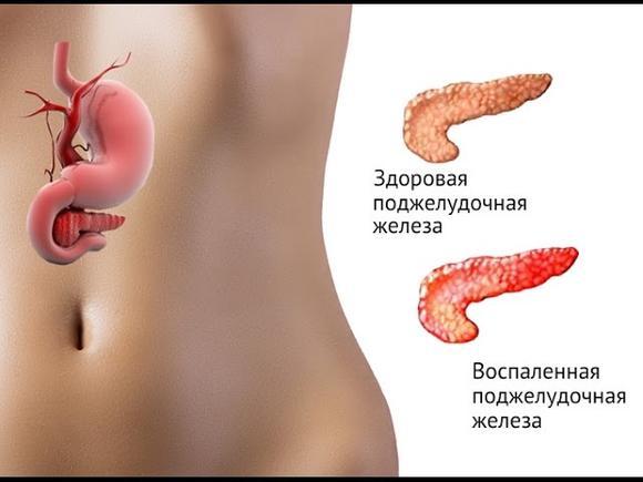 Воспаленная железа вызывает сильные боли