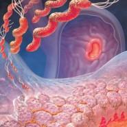 Дисбактериоз вызывает нарушения баланса флоры в кишечнике
