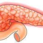 Воспаление поджелудочной железы отдает сильной болью