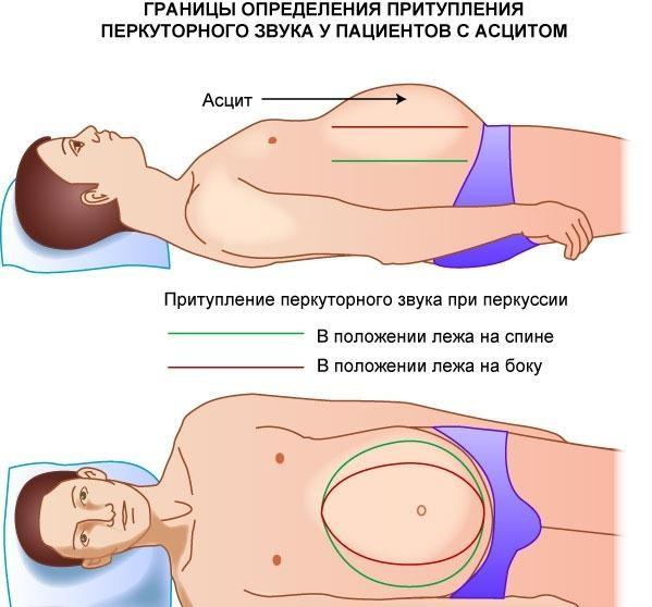 Доктор для эвакуации жидкости определяет границы и объем накопившейся жидкости