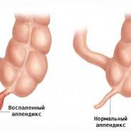 appendicit simptomy
