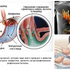 gastroezofagealnaya reflyuksnaya bolezn