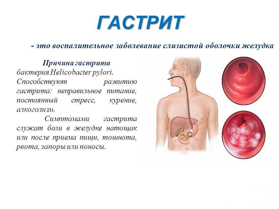 Заболевание гастрит