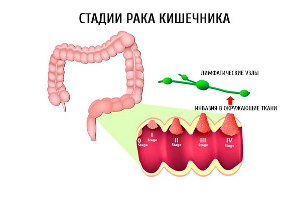 Развитие болезни