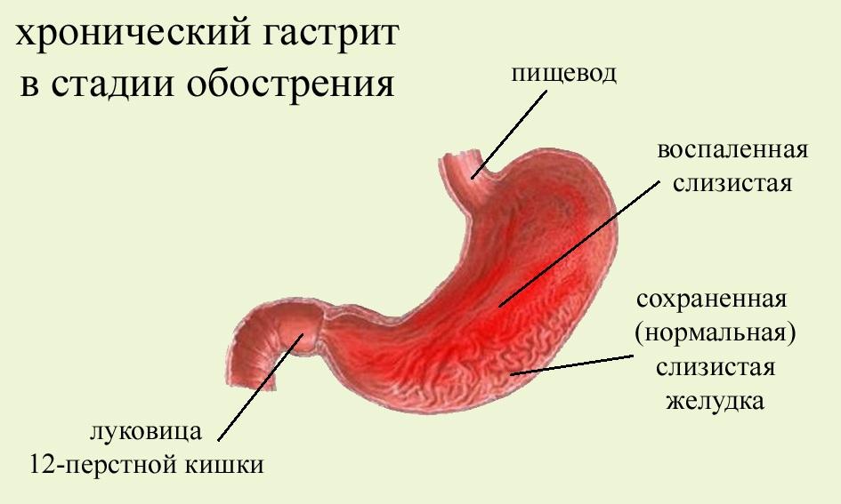 Обостренная стадия болезни