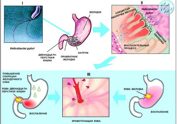 Язва появляется в следствие атаки слизистой кишечника вредоносными бактериями
