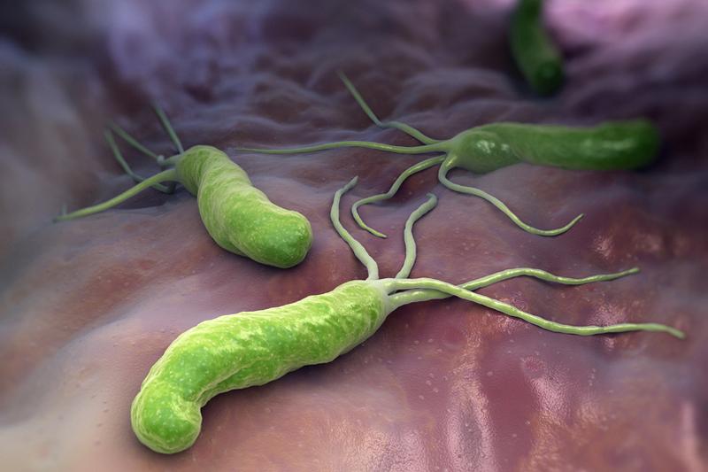 Одной из причин возникновения язвы является бактерия Пилори Хеликобактер