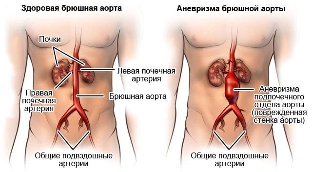Клиника заболевания