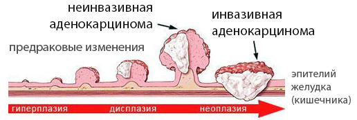 Аденокарцинома стадии