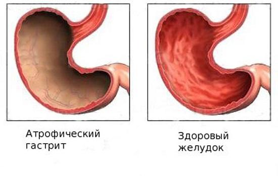 Арофическая форма заболевания