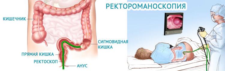 Ректороманоскопия прямой кишк